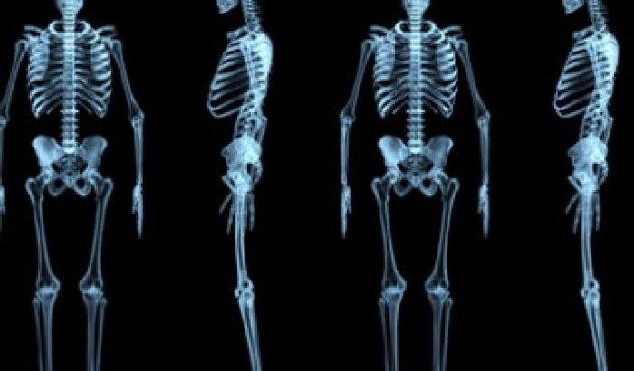 Results of the study OSTEOTENOFOVIR, about the effect that a change in the treatment has on bone mineral density, have been published.